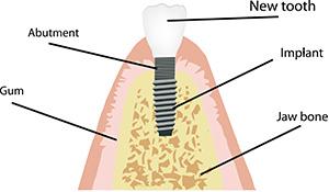 vancouver dental implants, jorgensen dds, cosmetic dentist