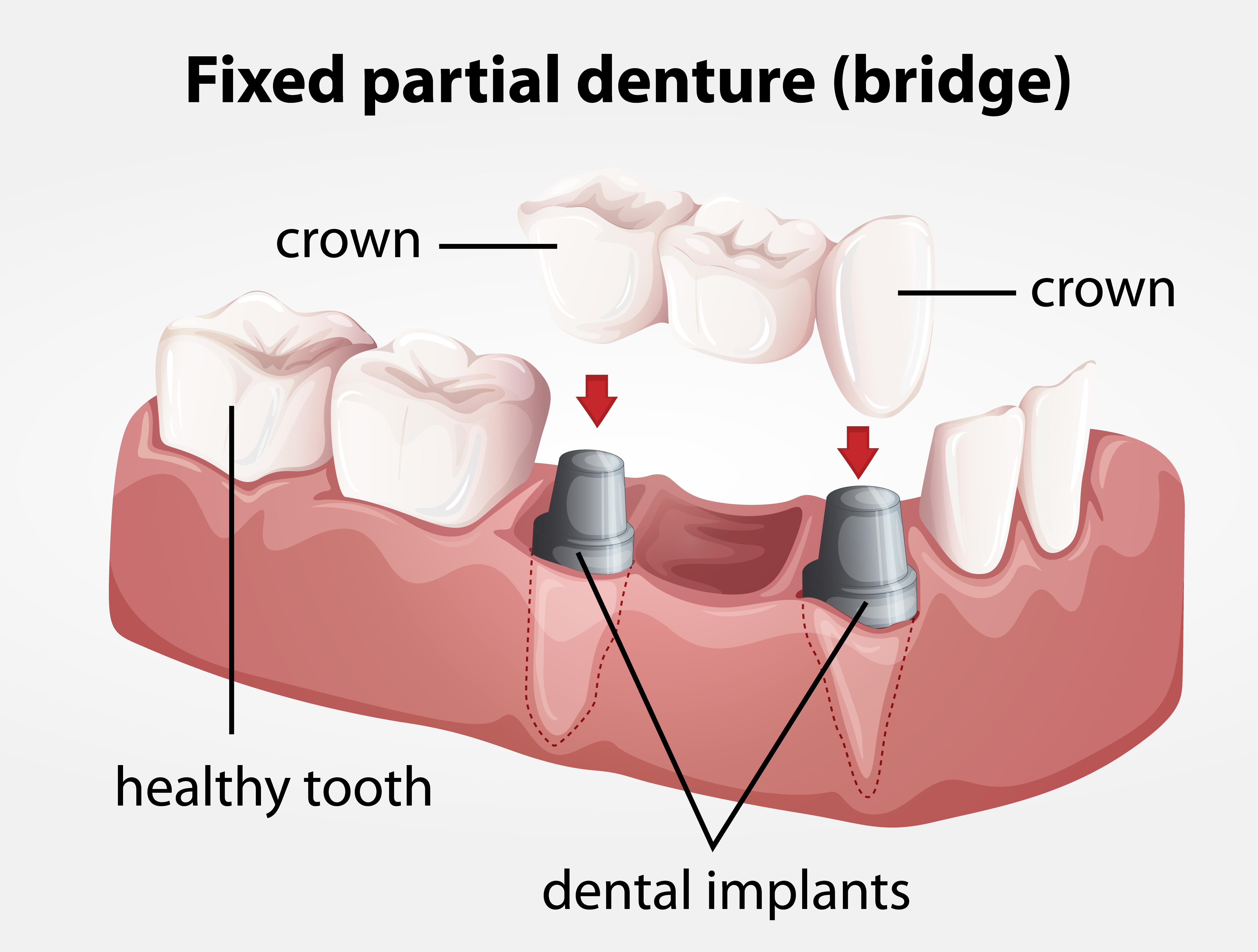 vancouver dental bridges, jack jorgensen dmd