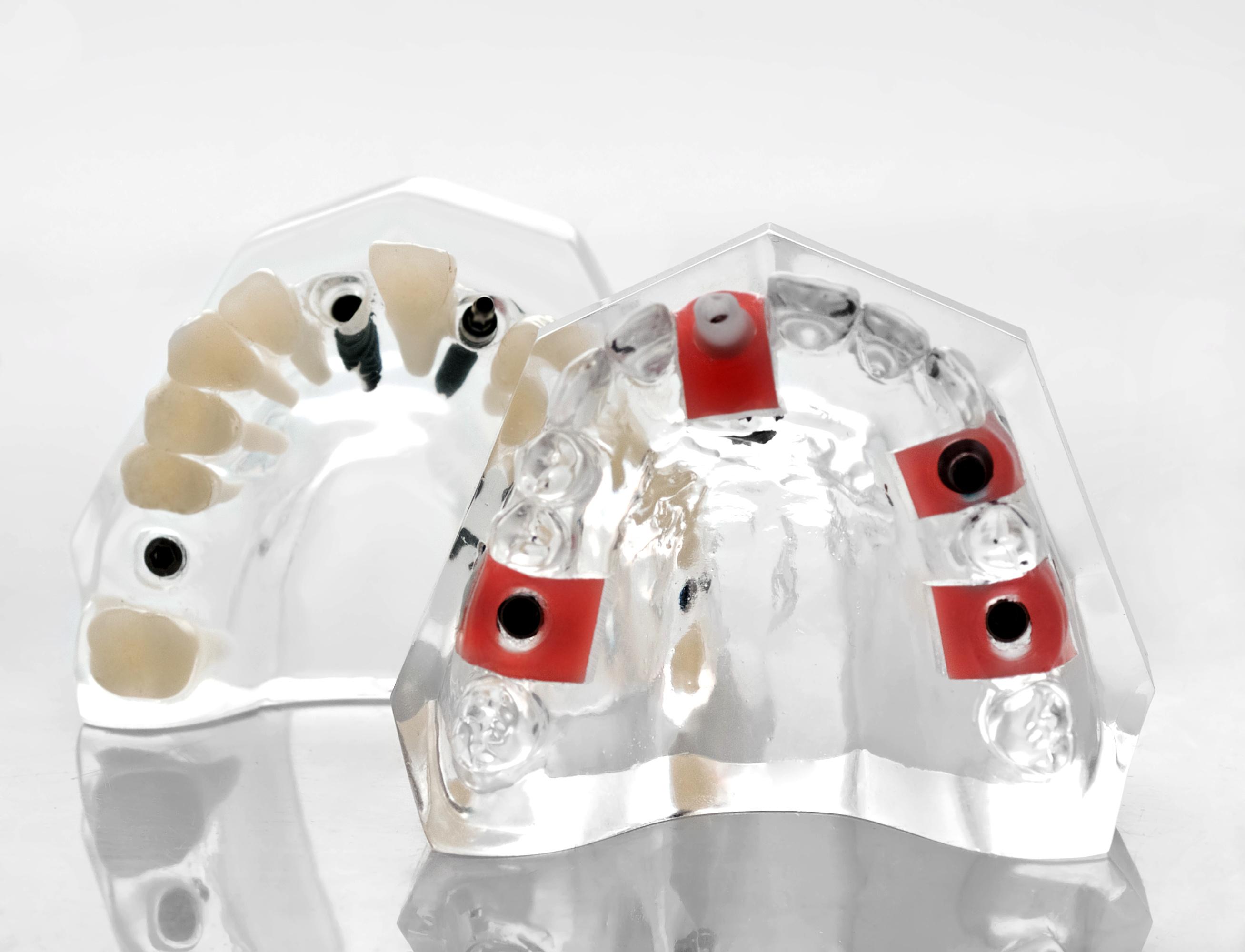 jorgensen, vancouver dentist, over dentures, dental implants