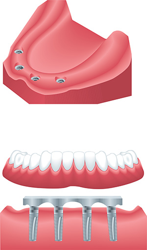 Vancouver dentist, mini dental implants, dr jorgensen