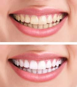 vancouver dentist, teeth whitening
